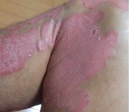 乾癬が治る兆候1