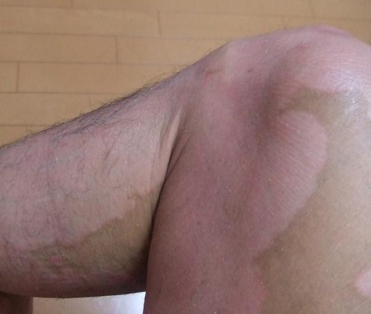 乾癬が治る兆候3